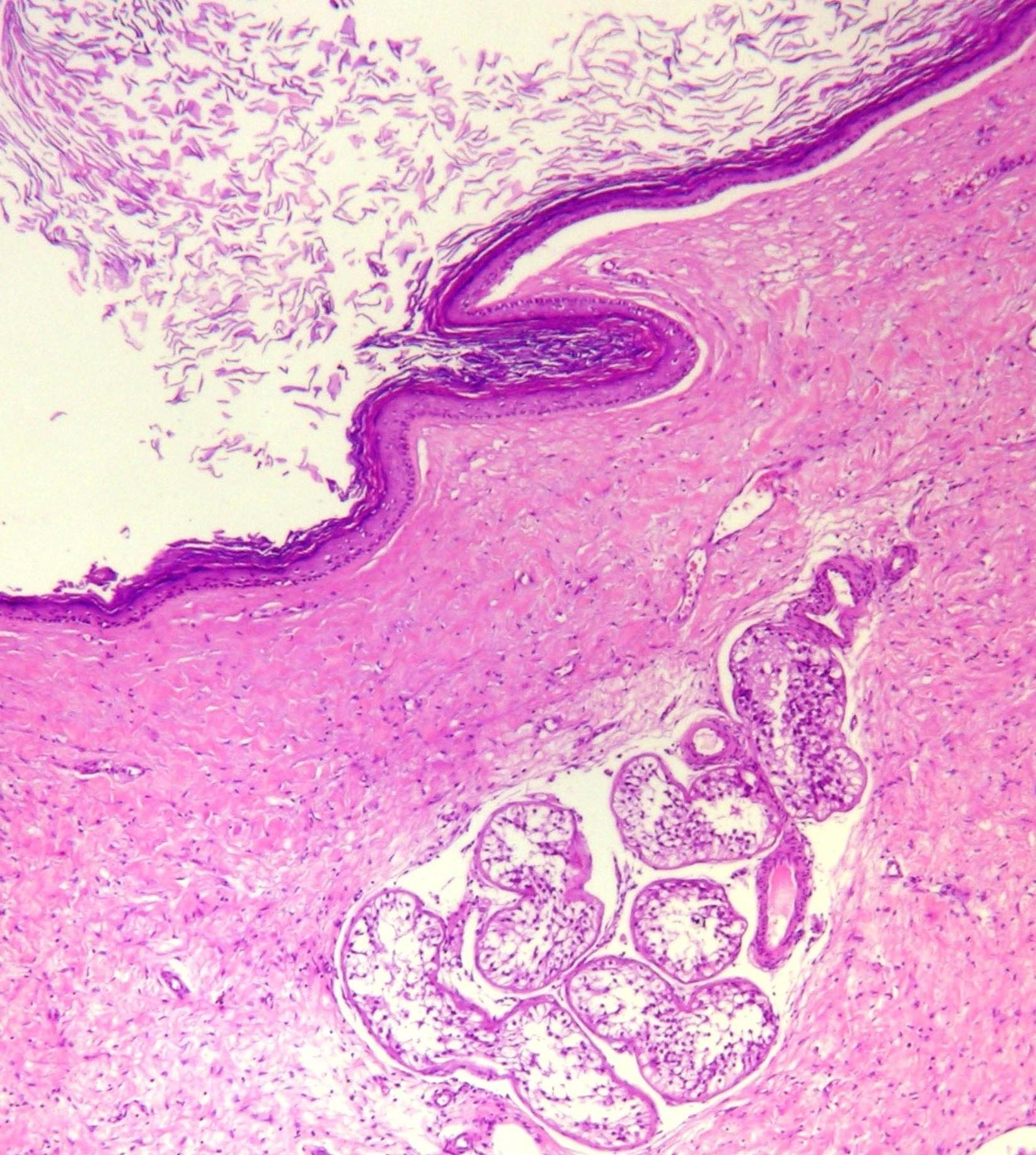 Caso Epidermal Cyst Icd 10