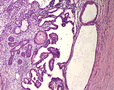 testicular mesothelioma